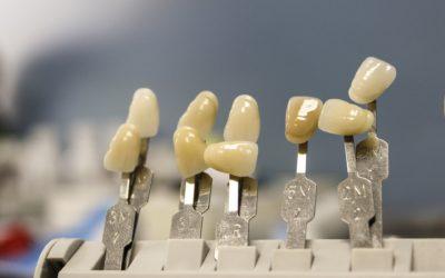 Przepiękne urodziwe zęby dodatkowo niesamowity cudny uśmiech to powód do płenego uśmiechu.
